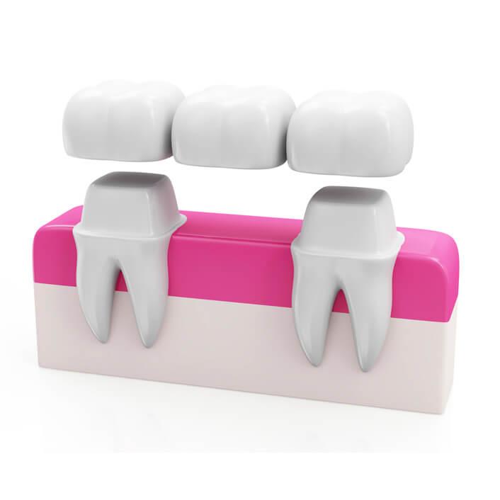 illustration showing how a dental bridge closes a gap
