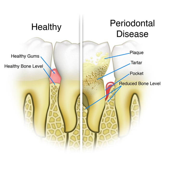 diagram of a healthy tooth versus a tooth with periodontal disease