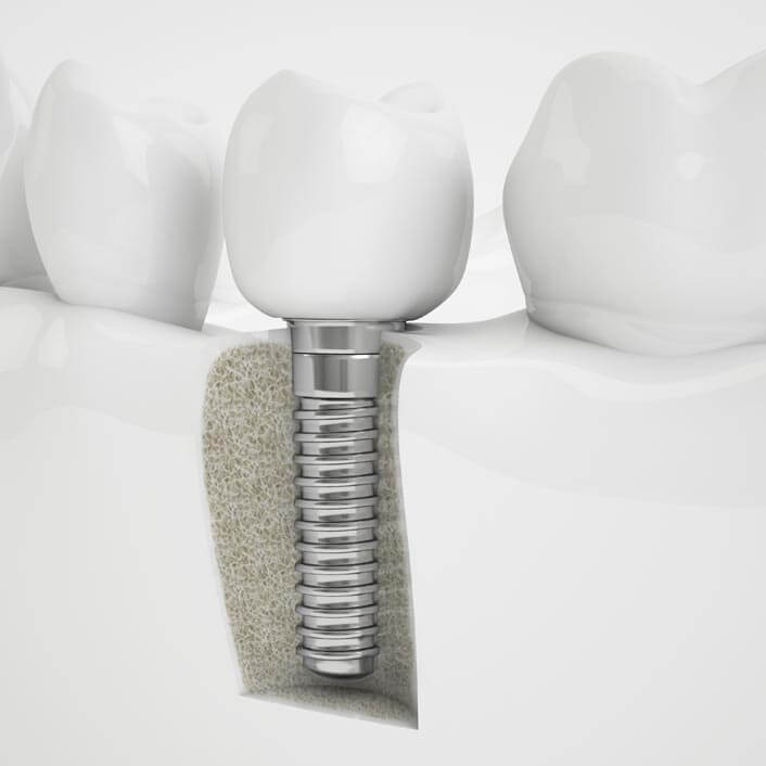 digital image of a dental implant showing how it is placed in the mouth