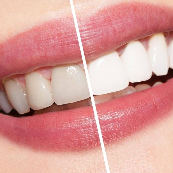 a close up of a woman's smile divided down the middle showing before and after whitening